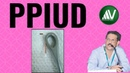 Postpartum (Postplacental) Intrauterine Device (PPIUD) Insertion Technique